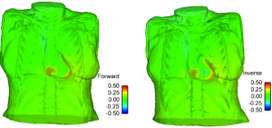 Top: a snapshot of the electrical potential distribution in case of apex stimulation. Bottom: a snapshot of the electrical potential distribution for re-entry simulation.